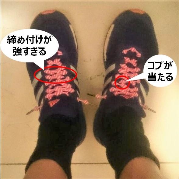 結ばない靴紐の問題点